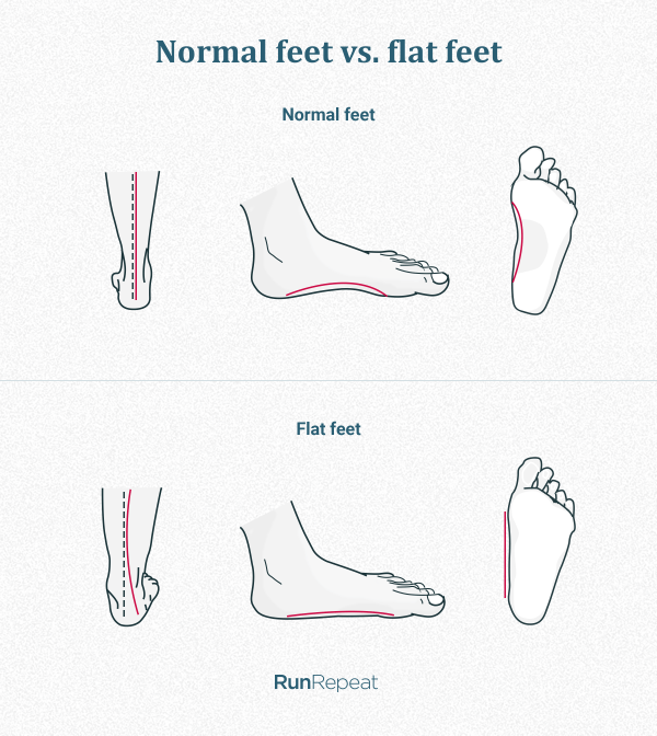 Difference between normal and flat feet.png