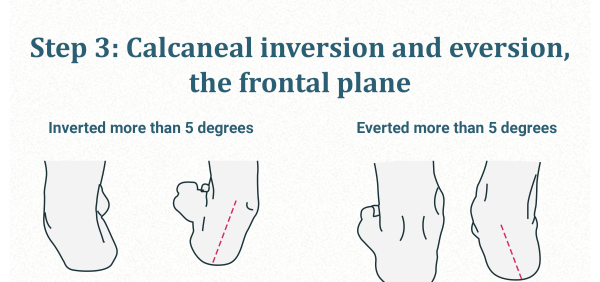 Calcaneal inversion and eversion
