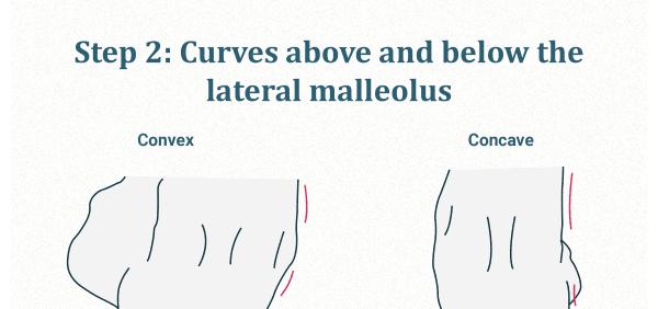 Lateral malleolus curvature