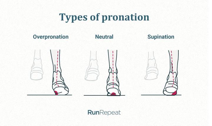 overpronation-underpronation-supination
