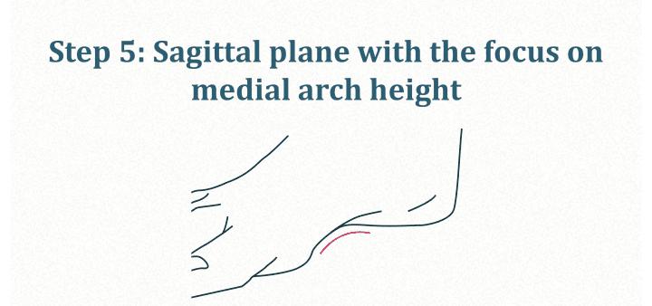 Sagittal plane: medial arch height