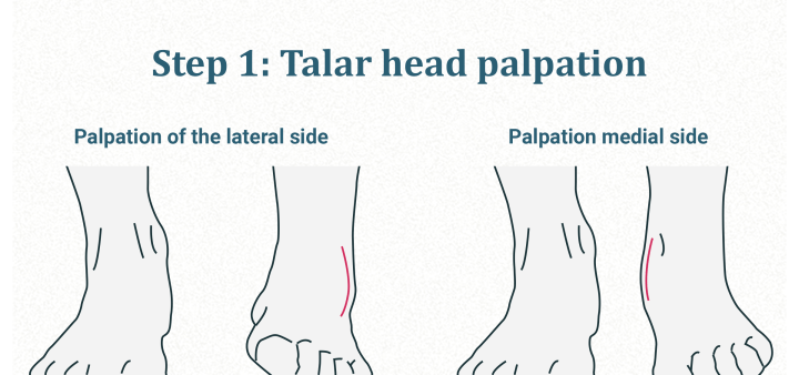 Talar head palpation