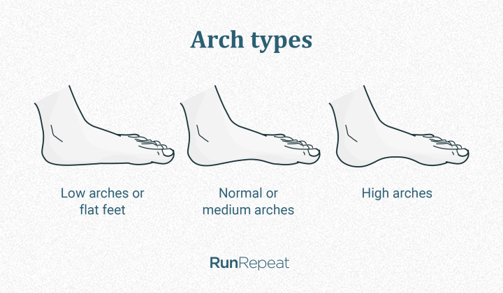 Flat feet, high arches and normal arches