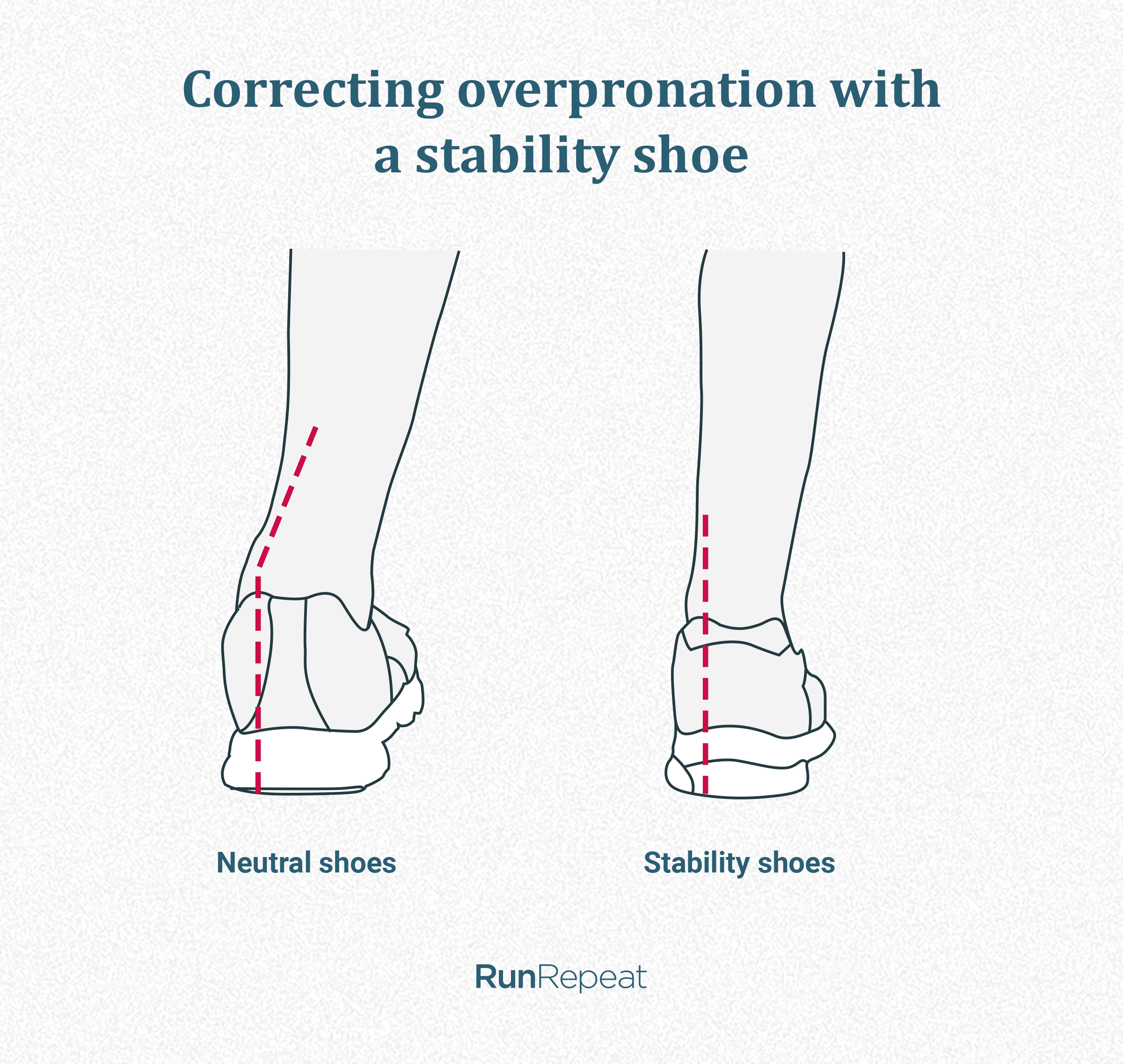 Overpronation correction.png
