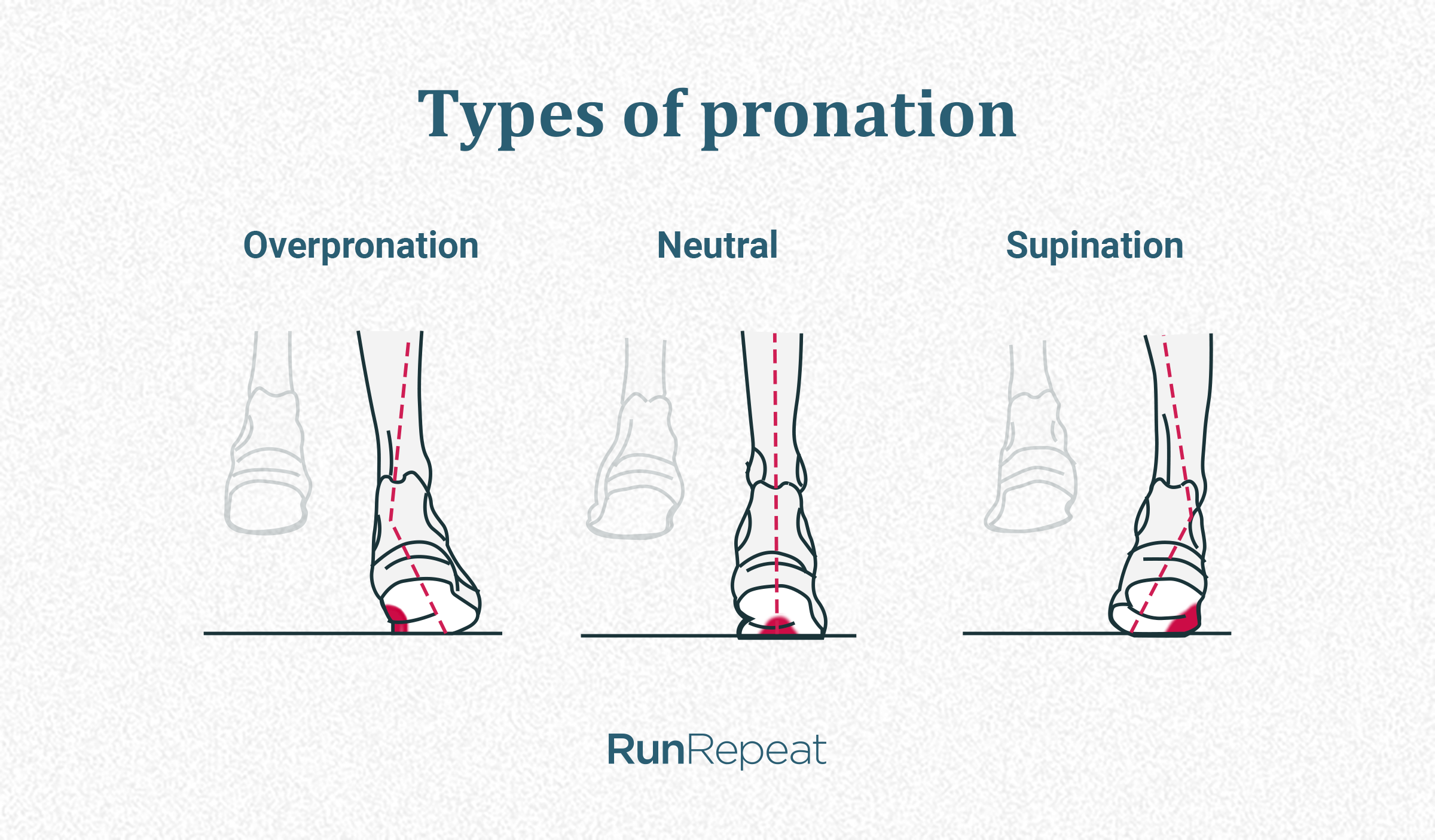 Types of pronation.png