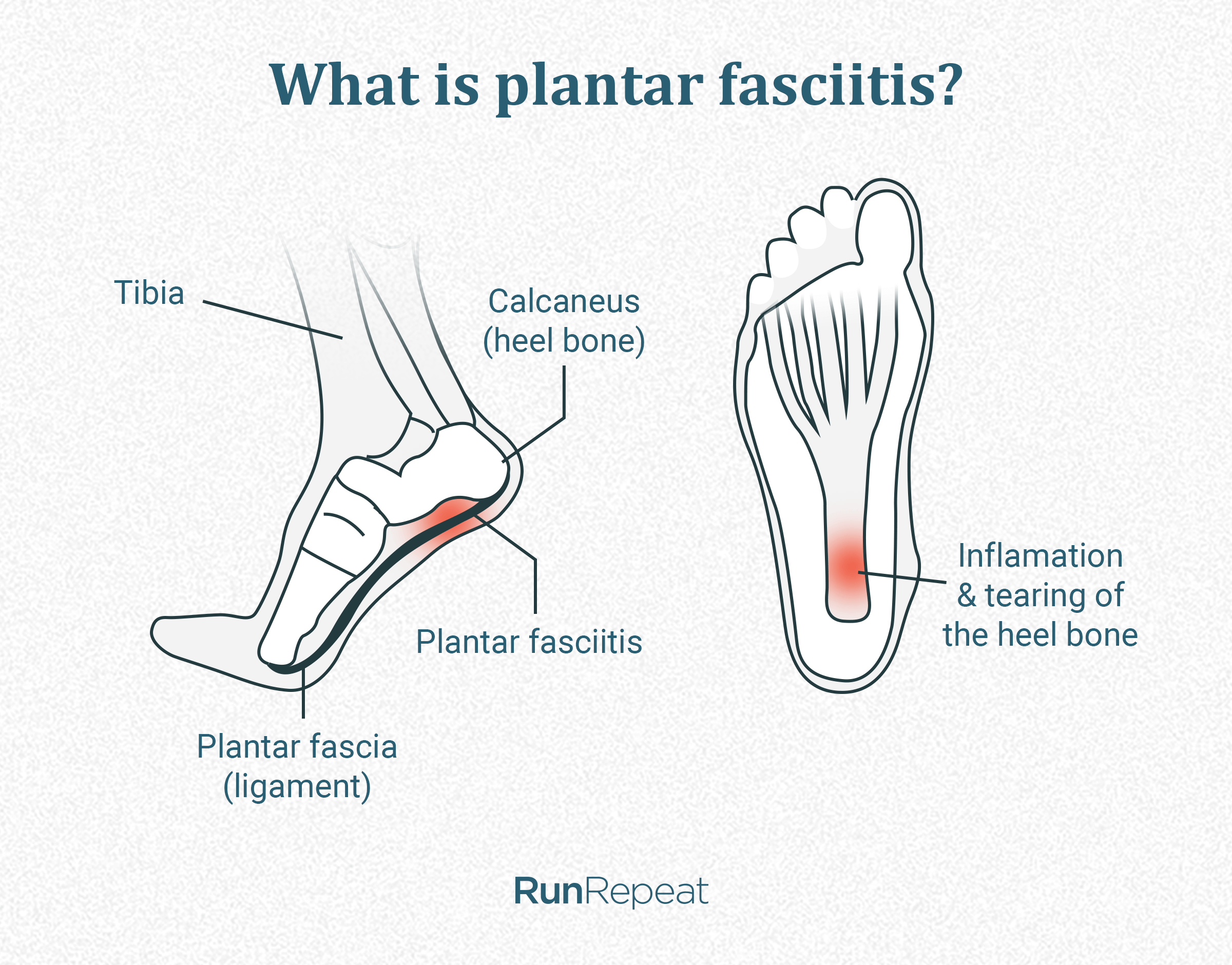 what-is-plantar-fasciities.png