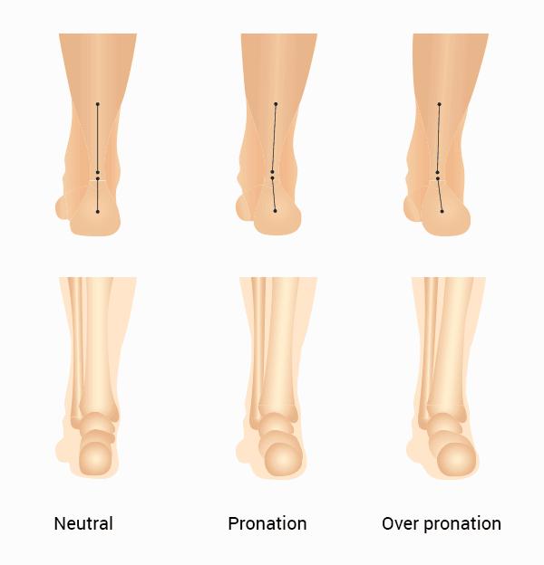 foot pronation types