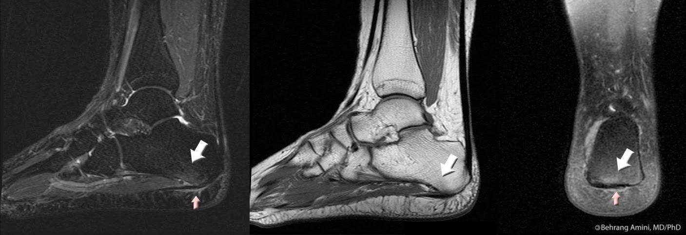 X-ray PF
